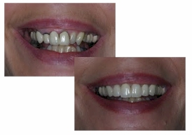 Gum recontouring and replacement crowns
